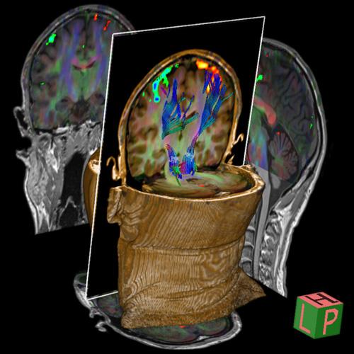Risonanza Magnetica Funzionale Neuronale